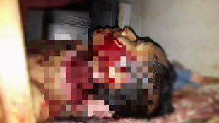 Fahrudin (27) pemuda Bogor yang nekat menggorok lehernya sendiri, Minggu 20/8 (dok. KM)